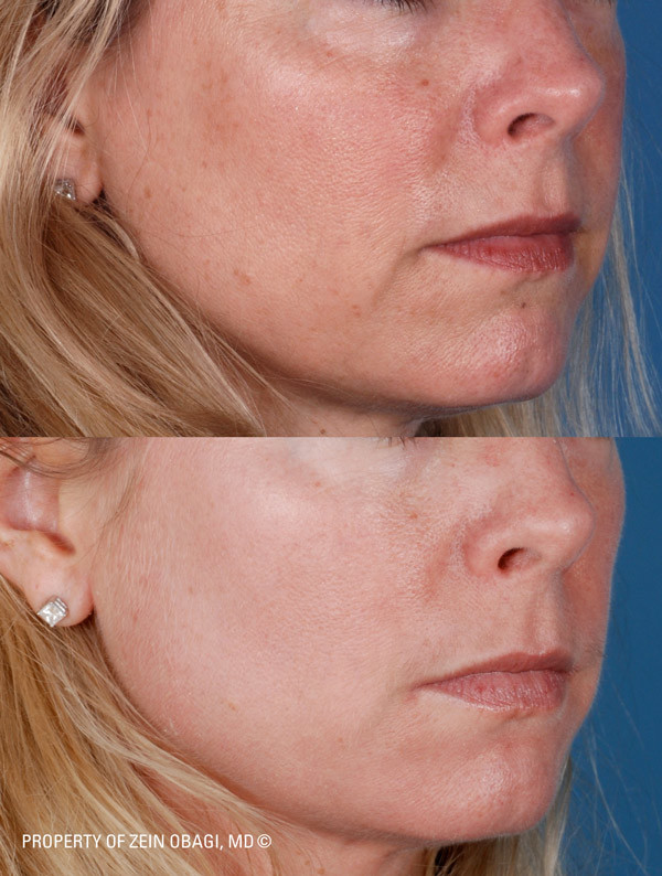 ZO Facial Peel Before and After| The Listening Doctor